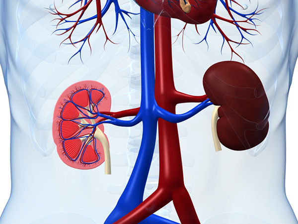 Kidney Disease and Diet