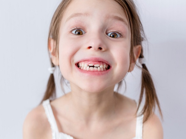 Little girl smiling - Prevent Early Childhood Cavities