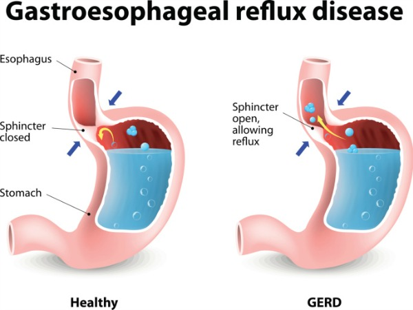 what can acid reflux needs